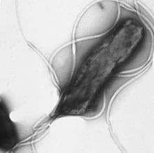 Спиралевидная бактерия